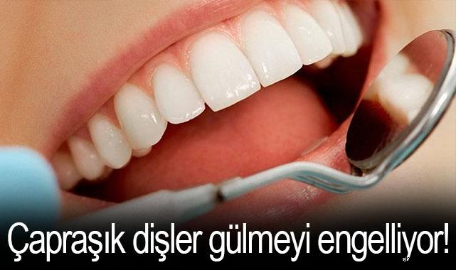 Çapraşık dişler gülmeyi engelliyor!